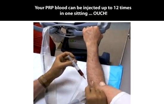 12 times injection of prp blood