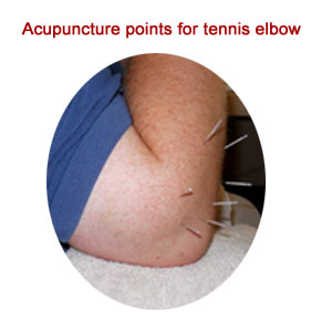 acupuncture tennis elbow treatment