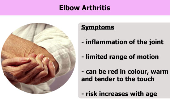 elbow arthritis condition