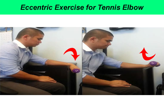 eccentric exercise for tennis elbow