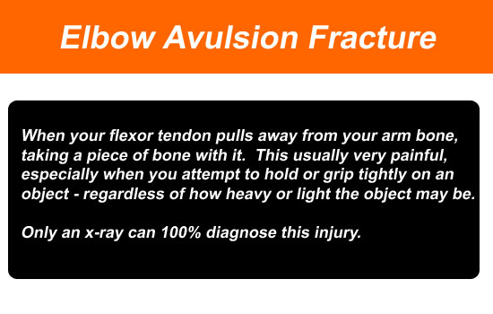 elbow avulsion fracture