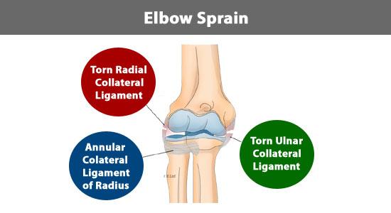 elbow ligaments sprain