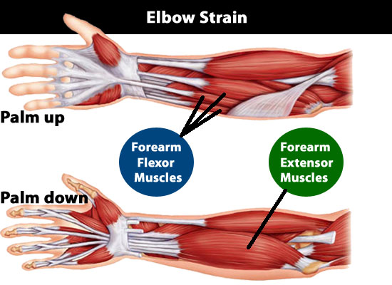 elbow muscle strain