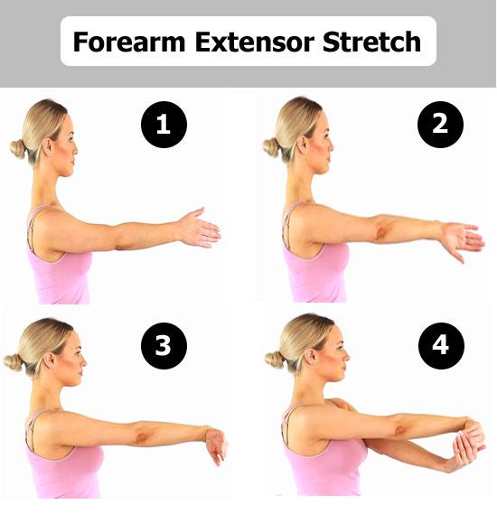 extensor stretch for tennis elbow