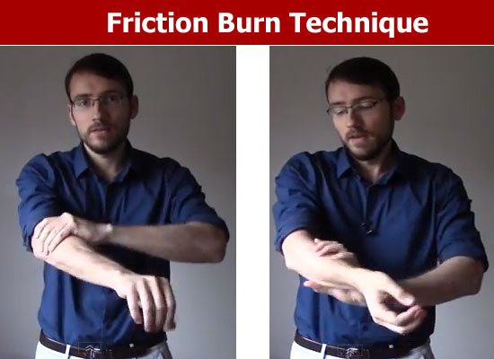 friction burn technique
