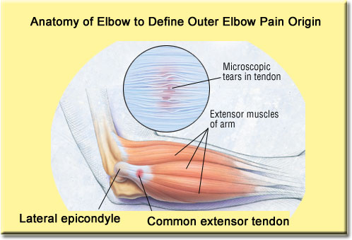 outer-elbow-pain