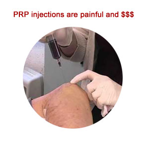 home treatment prp injection