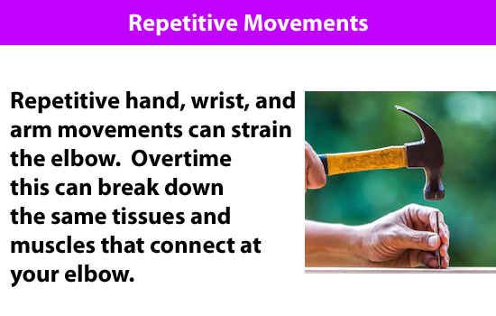 repetitive movements hurt