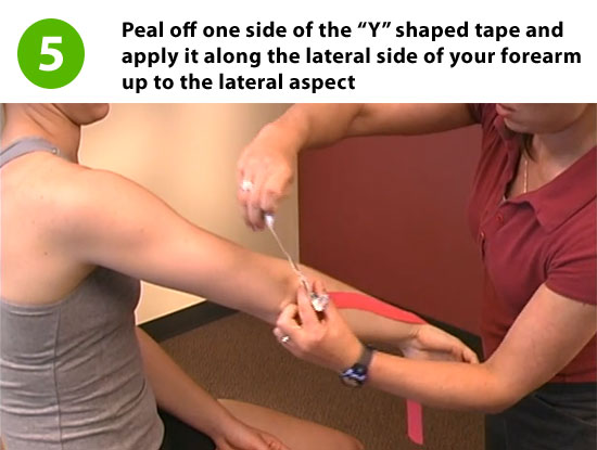 step 5 taping technique