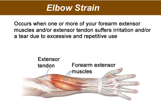 strained elbow