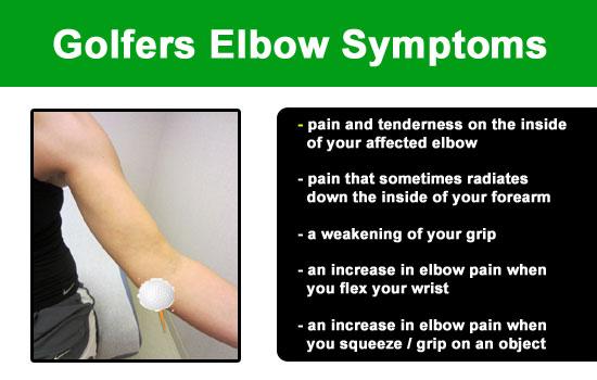 symptoms of golfers elbow