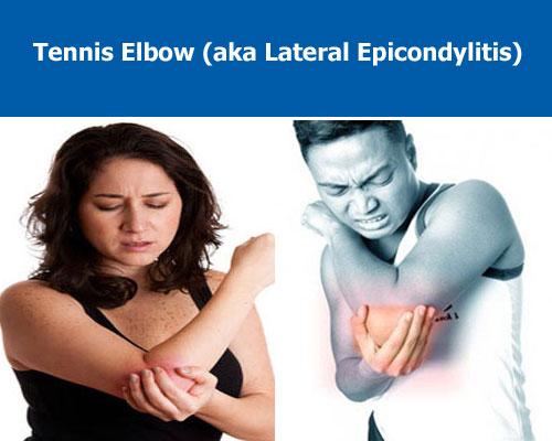 tennis elbow arm pain