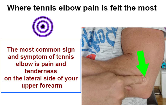 tennis elbow point