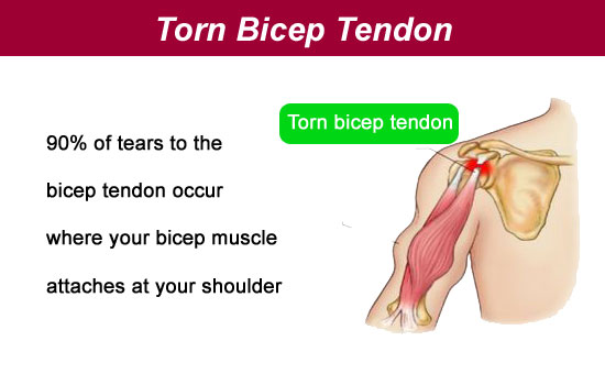 torn bicep tendon