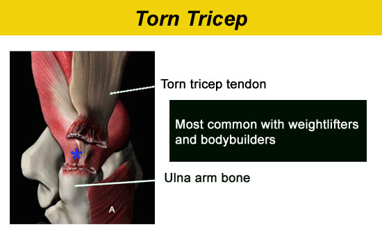 torn triceps muscle