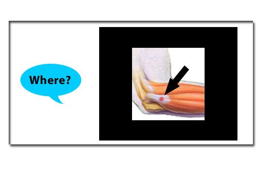 where explaination tennis elbow